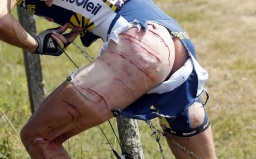 Tour de France 2011_johnny-hoogerland.jpg